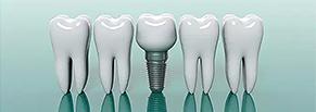 Продвижение стоматологической клиники имплантации зубов в Москве